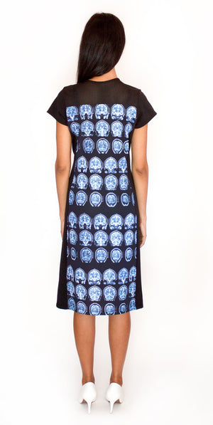 Brain Scan MRI Dress