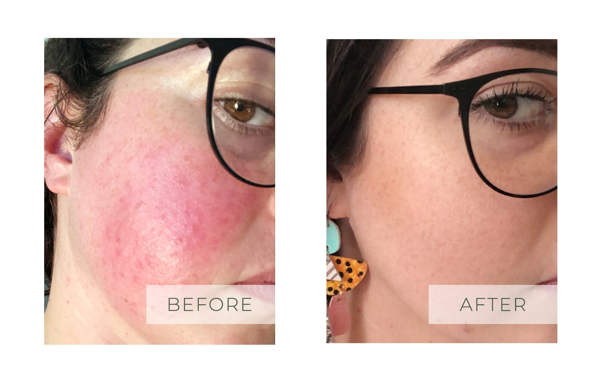 Rosacea before and after Power Skin Solutions