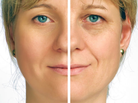 how you are prematurely aging your skin