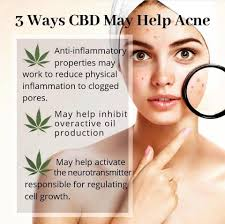 CBD For Acne:  Does it really work?  Some Studies.