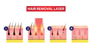 GentleMax Pro -  Laser Hair Removal  (Large Area 3 Session Package)