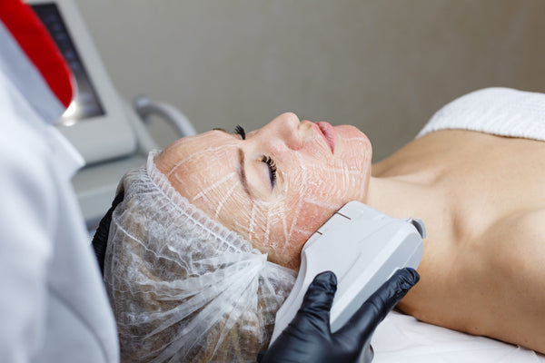 LASER FACELIFT: THE BASICS