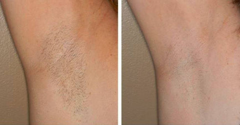 All About Laser Hair Removal Cost Pain And More