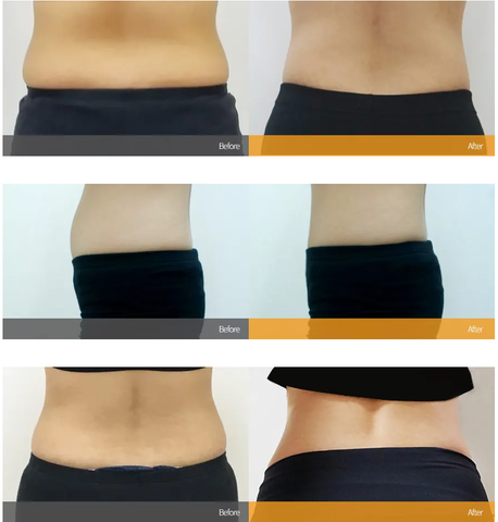 mini-liposuction-before-and-after