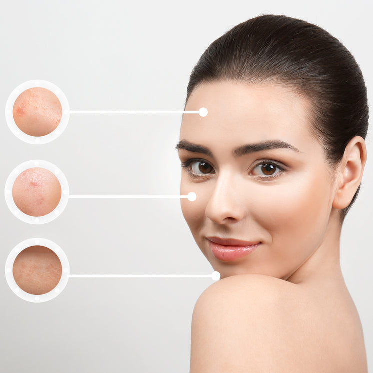 One-day acne scar treatment package [Chang Dermatology Clinic] - Treatment