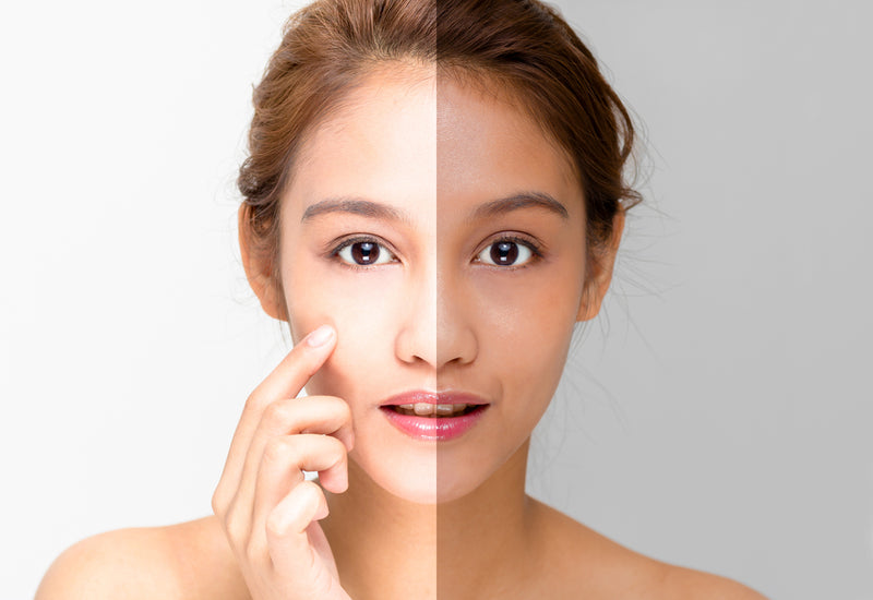 1-Day Skin Whitening Package [Ppeum] - Treatment