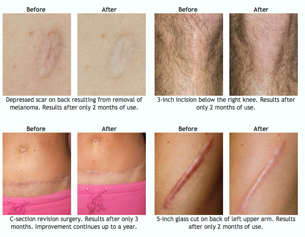 Cimeosil before and after scar gel