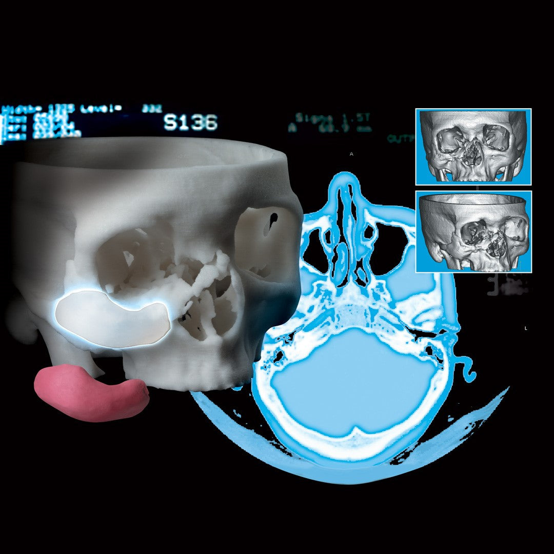 Implantech 3D Accuscan Patient-Specific® Implants