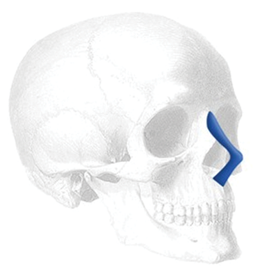 Implantech Anatomical Nasal Implant