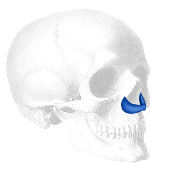 Implantech Peri-Pyriform™ Nasal Implant