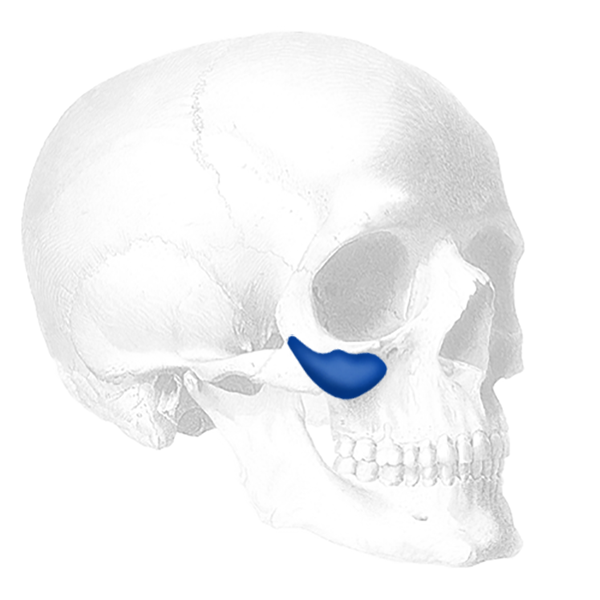 Implantech Binder Submalar® Style II Facial Implant (Sold in Pairs)