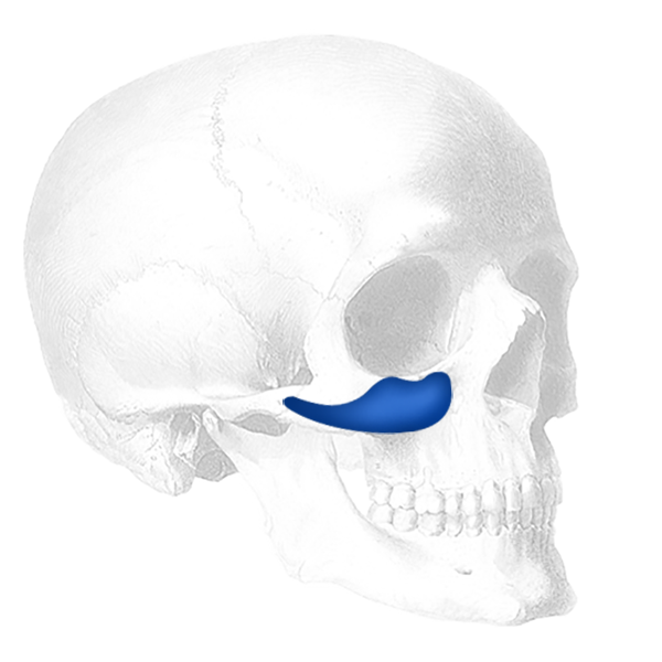 Implantech Binder Submalar® Facial Implant (Sold in Pairs)