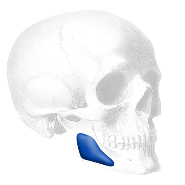 Implantech Conform™ Mandibular Angle Implant