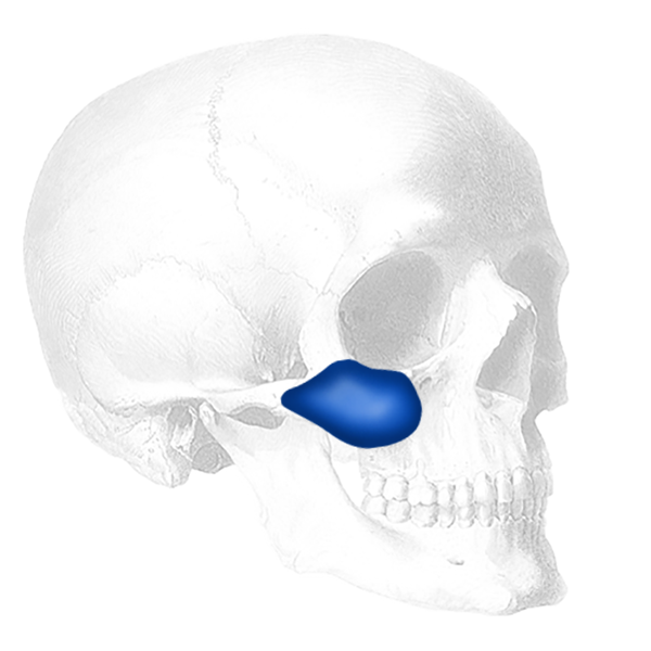 Implantech Combined Submalar Shell™ Facial Implant (Sold in Pairs)