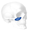 Implantech Extended Flowers Tear Trough® Facial Implant (Sold in Pairs)