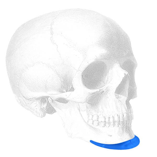 Implantech Mandibular Pre Jowl Chin™ Implant