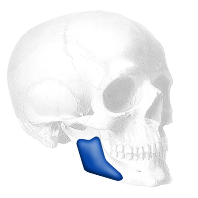 Implantech Posterior Mandibular Angle™ Implant