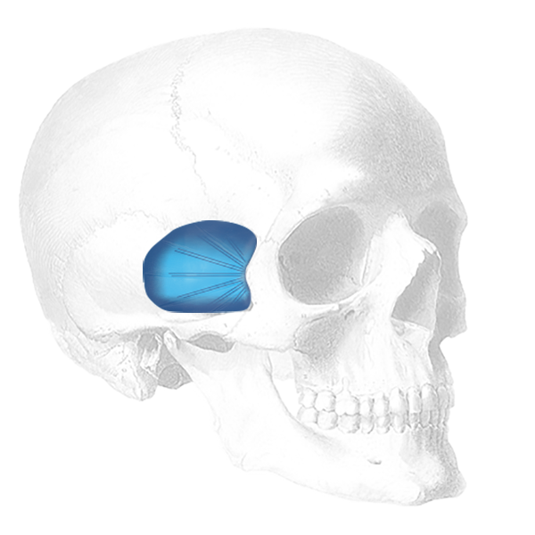 Implantech Temporal Shell Facial Implant