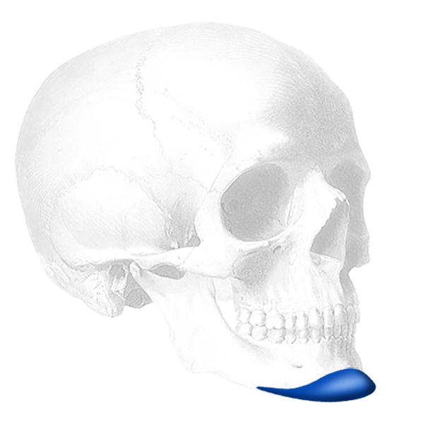 Implantech ePTFE-Coated Extended Anatomical Chin Implant