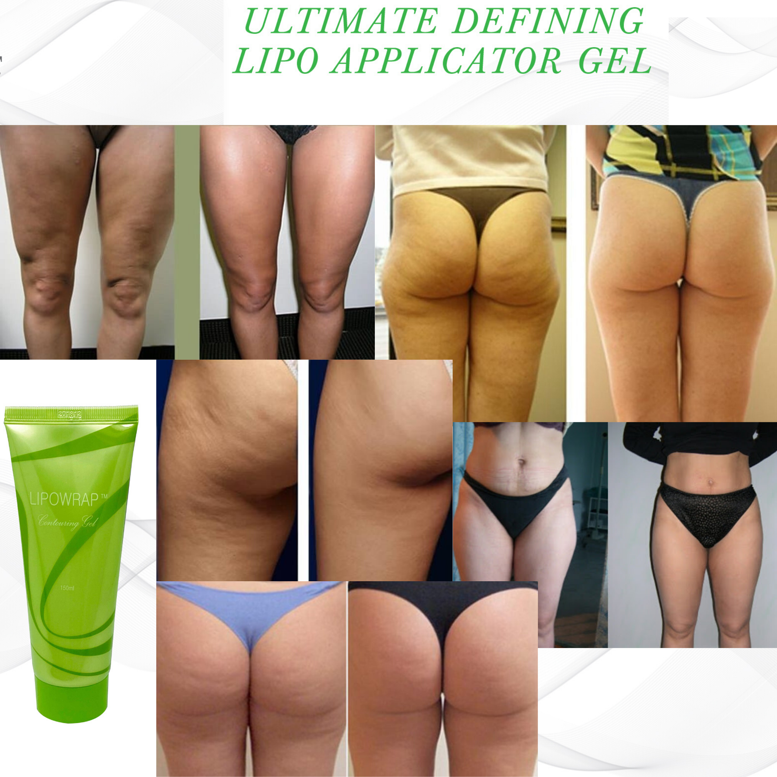 lipo applicator gel before and after