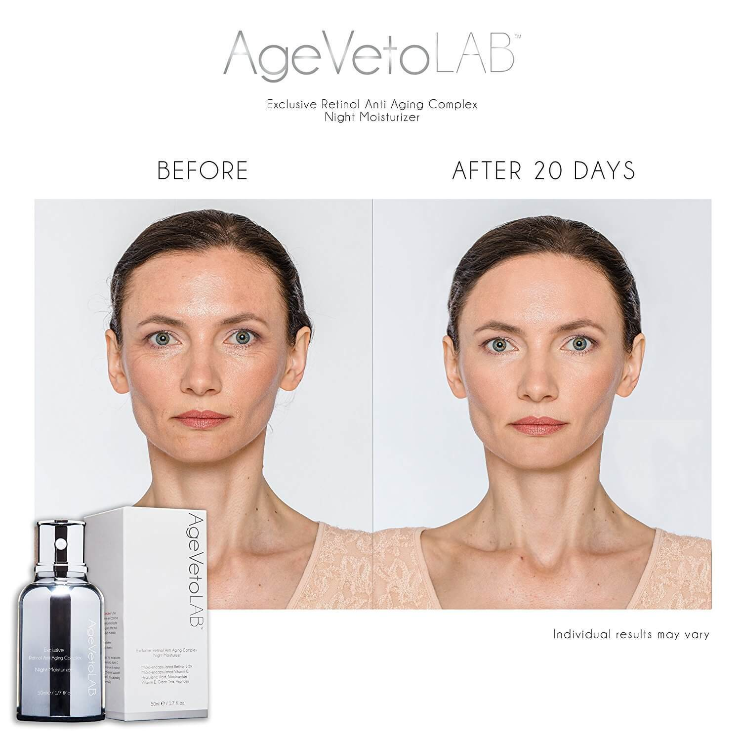Retinol Facial Night Moisturizer Cream Before After - Medactiveshop