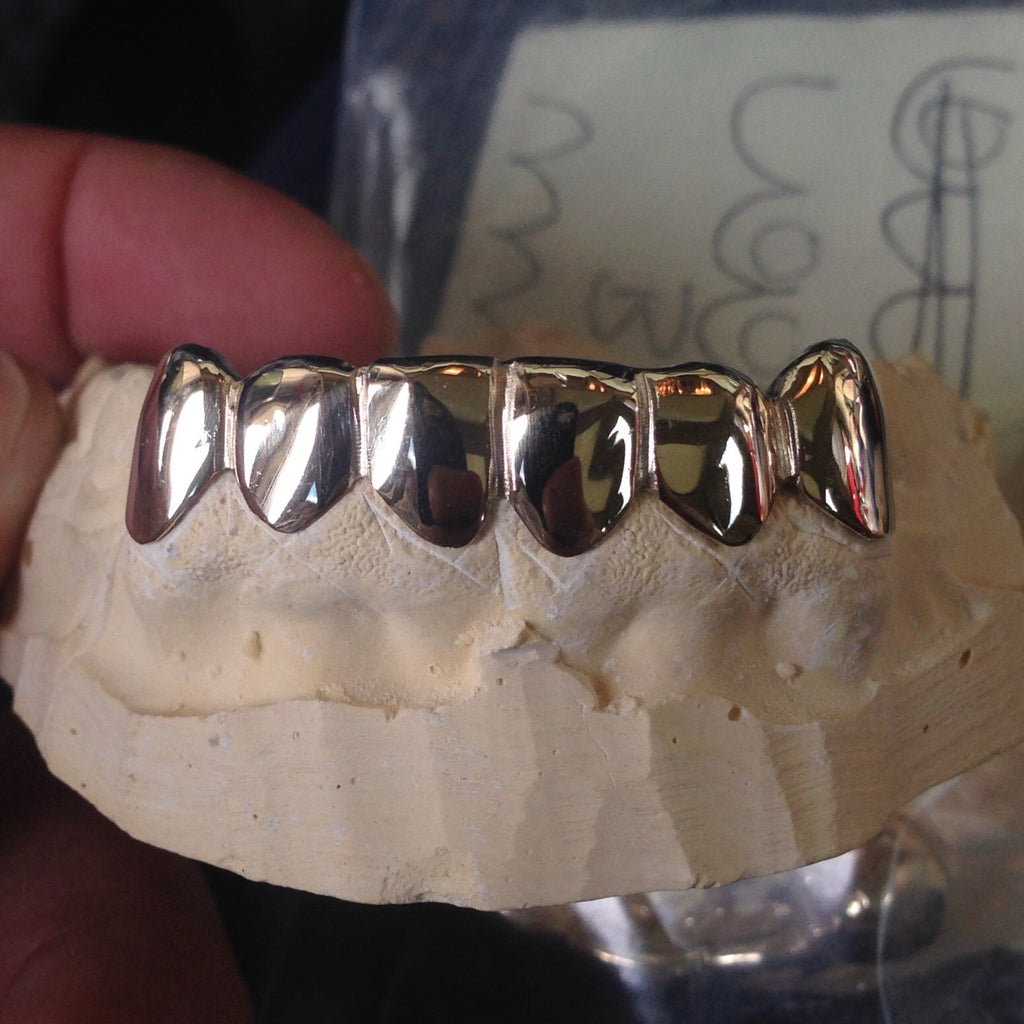 6 Piece 14k Gold Grill