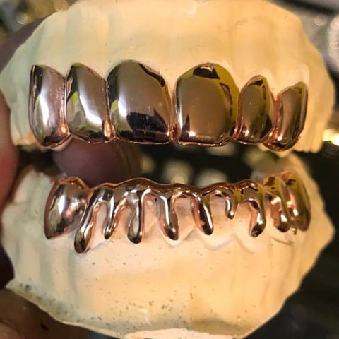 18k Rose Gold Top 6 + Bottom 8 Custom Drip & K9 Grill