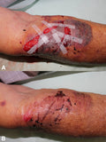 injured knees with skin ripped