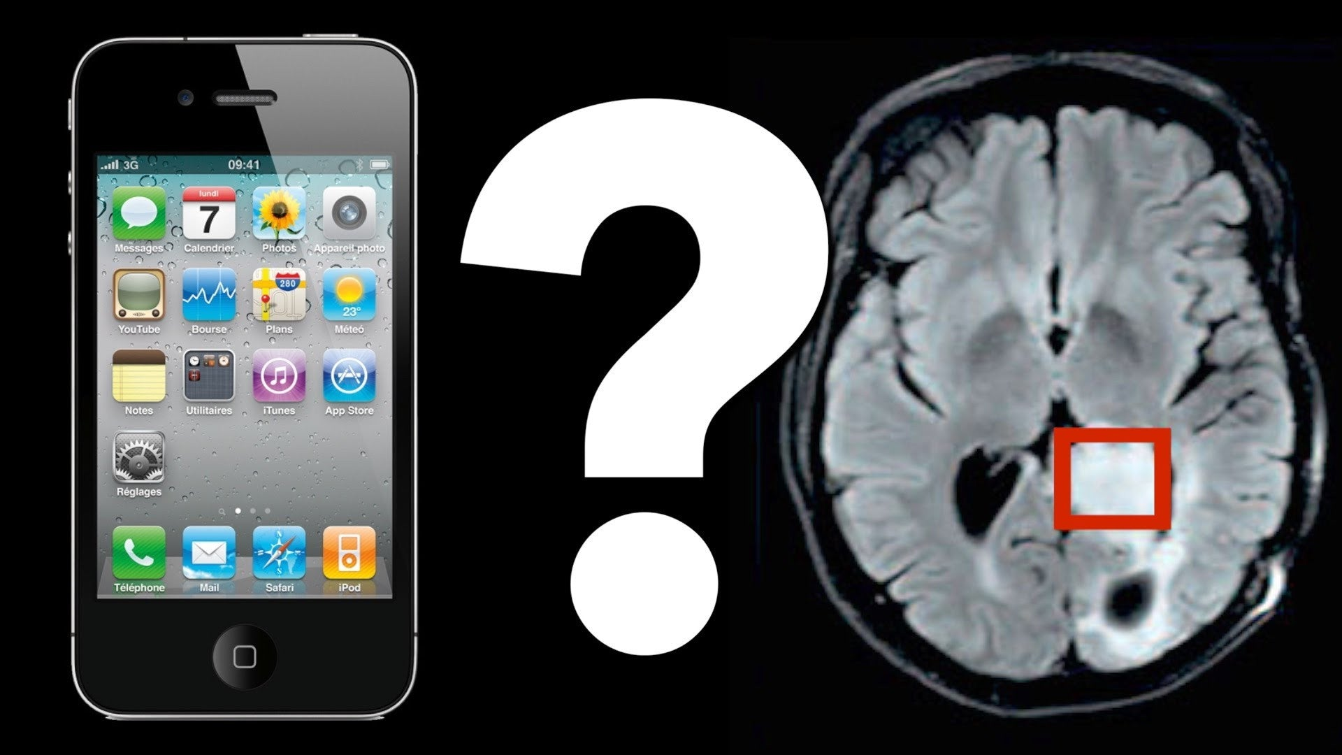link between phone radiation and brain tumor
