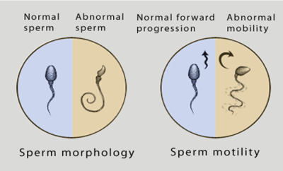 sperm mortility analysis