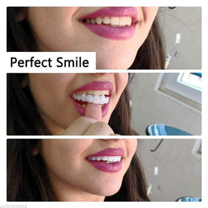 Snap On Instant Perfect Smile!