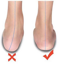 Load image into Gallery viewer, Silicone Hammer Toe Corrector Daily toe pin finger protector