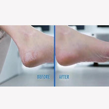 Load image into Gallery viewer, Electric Foot Grinder-Remove Your Callus Easily