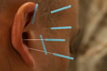 Load image into Gallery viewer, Auricular Acupuncture