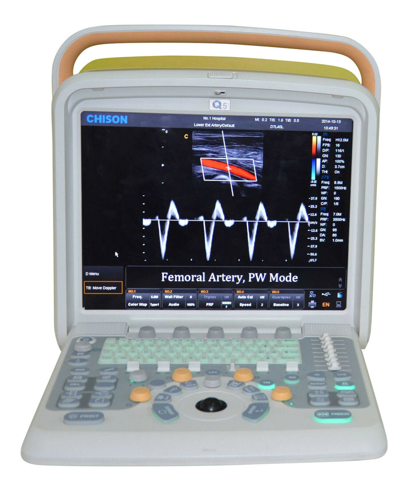 Color Doppler Ultrasound Scanner & Two probes Convex&Linear Probe - Chison Q5