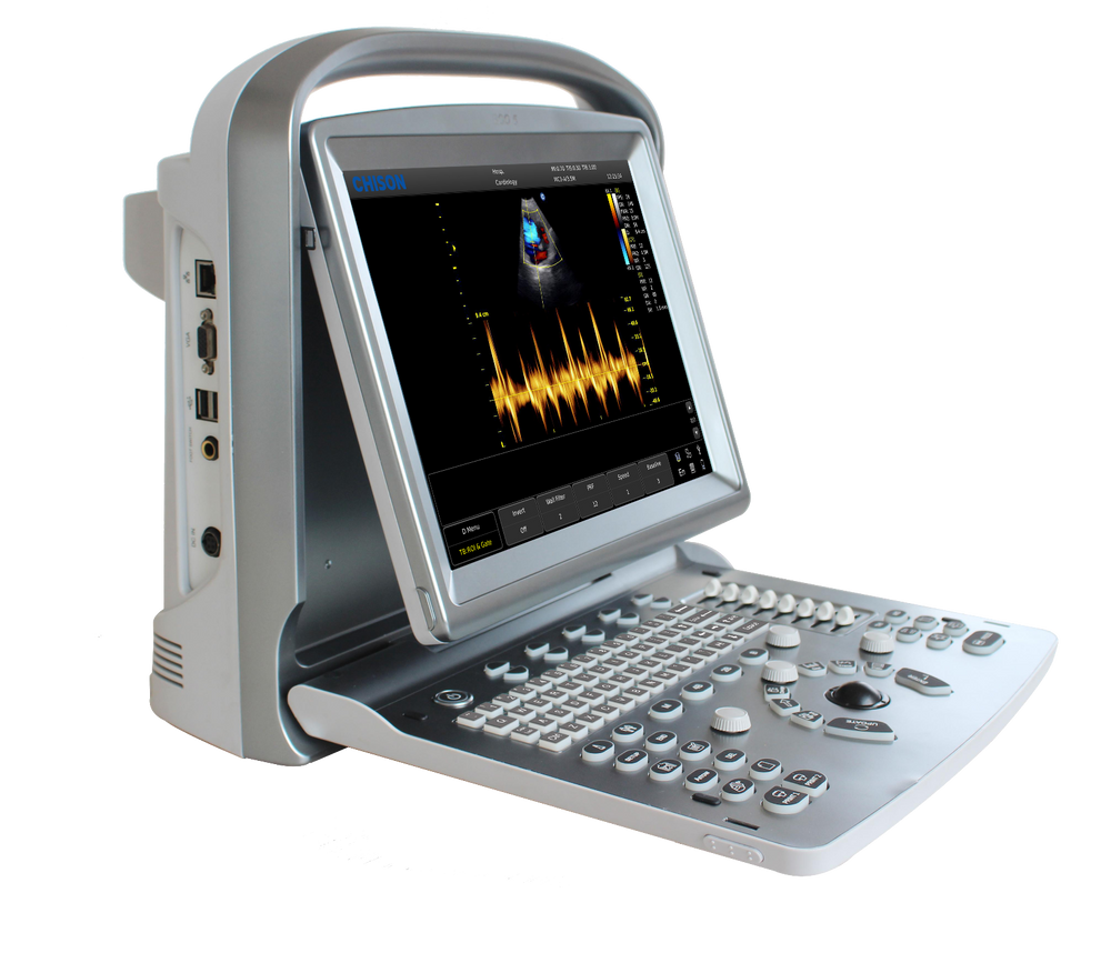 Chison ECO5Vet Portable Ultrasound with One Probe of Choice, Demo Model