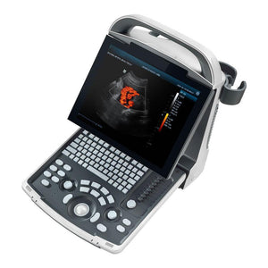 ECO-30 Color Doppler Ultrasound Machine