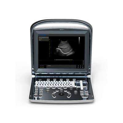 Affordable Chison ECO1 Ultrasound