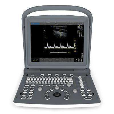 Large LED Screen | Chison ECO2 Ultrasound