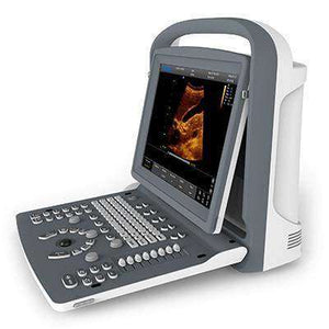 Chison ECO2 Ultrasound | Optimized Images