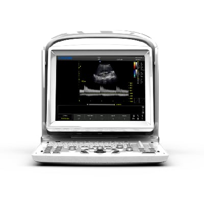 Chison ECO3 Human Ultrasound