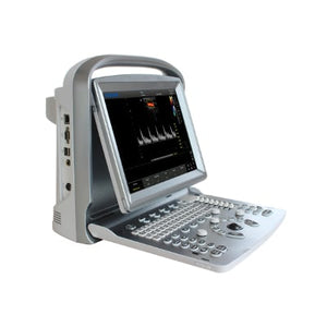 Chison ECO5 Color Doppler Ultrasound