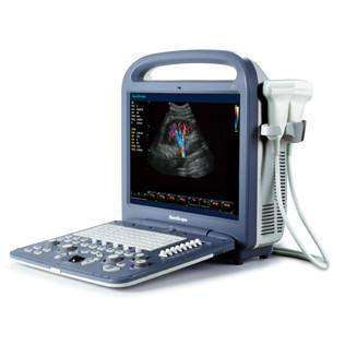 SonoScape S2 with 4D Advanced Color Doppler Ultrasound | KeeboMed