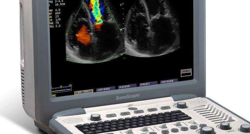 SonoScape S8 Used Color Doppler Ultrasound | KeeboMed