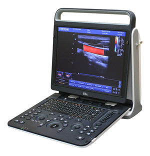 Chison Ebit 60 Color Doppler Ultrasound Machine for Sale