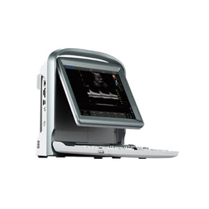 Chison ECO5 Ultrasound Machine
