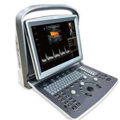 Chison ECO6 Color Doppler Ultrasound