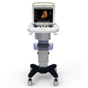 Chison Q5 with 4D Ultrasound, Optional Trolly Cart For Mobility | KeeboMed