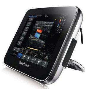 Chison Sonotouch 30 Touch Screen Ultrasound | KeeboMed