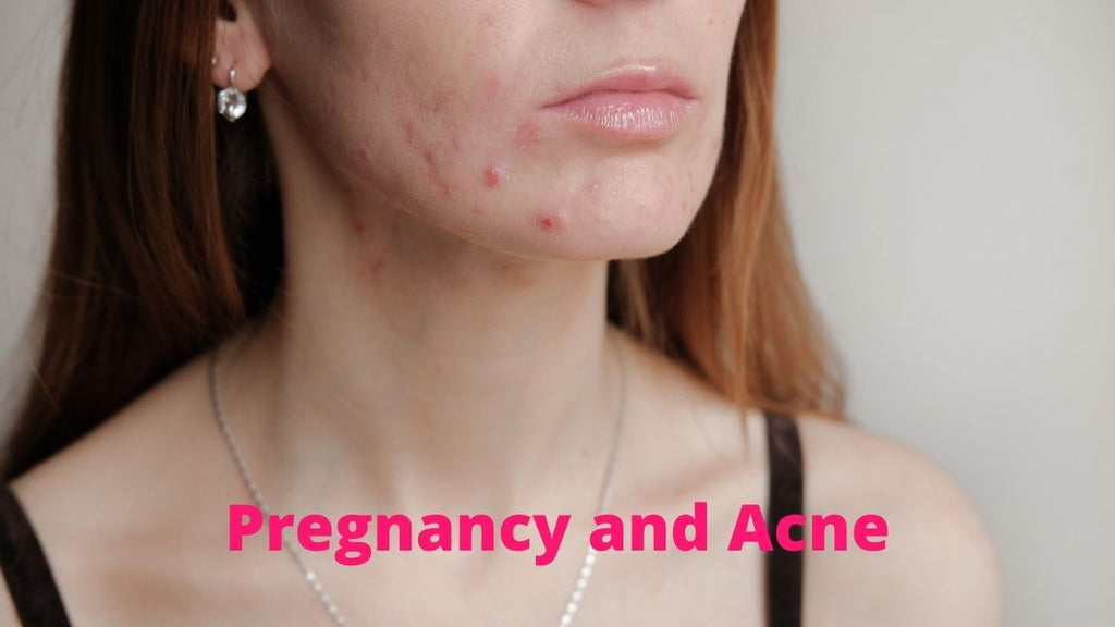woman with facial acne